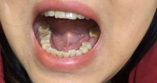 [Hỏi Đáp] Mất răng hàm 1 năm làm Implant được không?