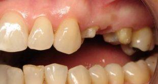 [Hỏi Đáp] Phục hình cầu sứ sang cấy ghép răng Implant có được không?