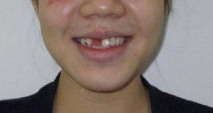 [Hỏi Đáp] Phục hình Implant cho răng cửa trong bao lâu?