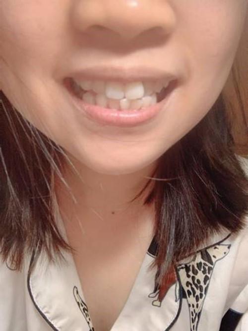 [Hỏi Đáp] Răng mọc lệch nên niềng răng hay bọc sứ?