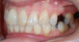 [Hỏi Đáp] Răng sâu vỡ lớn điều trị được không?