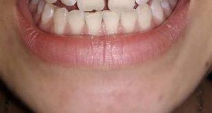 [Hỏi Đáp] Răng thưa điều trị như thế nào?