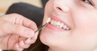 Cách trồng răng khuyểnh cực đẹp mà an toàn hiệu quả?