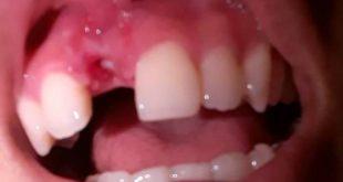 Cầu răng sứ bị hư phải làm sao