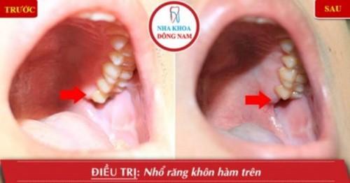 """""""Đề Cử"""" 10 nha khoa nhổ răng không đau và an toàn nhất TPHCM"""