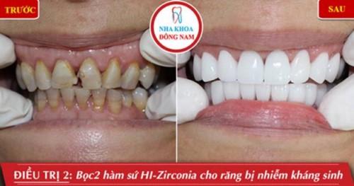 Nên chọn bọc răng sứ trong 6 nha khoa nào sau đây ở TPHCM