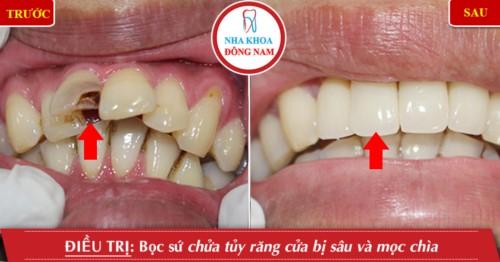 Hình ảnh chữa tủy răng tại Nha khoa Đông Nam