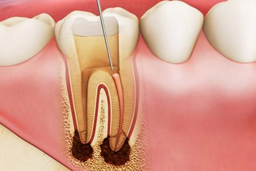 Nha khoa chữa răng giỏi nhất TPHCM
