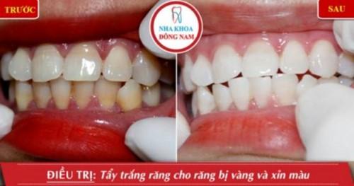 Top 7 nha khoa Tẩy Trắng Răng đẹp nhất TPHCM bạn muốn tìm