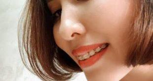 Niềng răng khớp cắn ngược