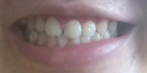 răng bị lệch nhân trung