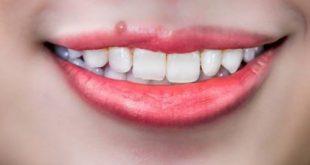 răng kẹ mọc thừa