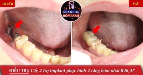 Trồng răng Implant bị đào thả