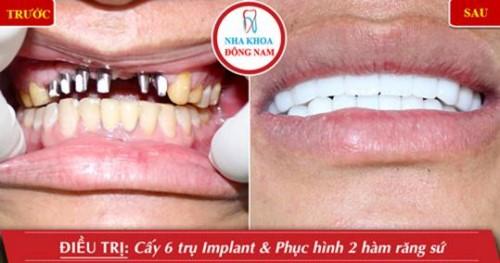 Trồng răng Implant bị đào thải