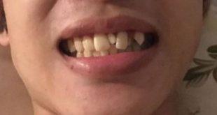 răng chuột