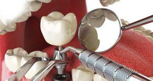 10 địa chỉ cấy ghép răng Implant uy tín nhất quận 1