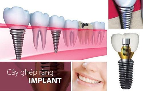 Top 10 địa chỉ nha khoa cấy ghép răng Implant uy tín nhất quận Phú Nhuận