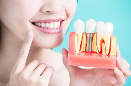 Top 10 nha khoa cấy ghép Implant tốt nhất huyện Nhà Bè