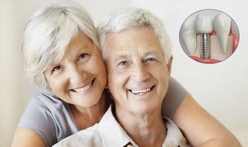 Top 10 Nha khoa cấy ghép răng Implant tốt nhất quận 10