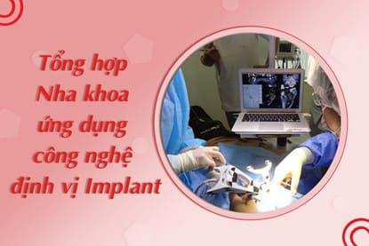 Tổng hợp các nha khoa ứng dụng công nghệ định vị Implant