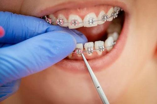 Chỉnh nha - niềng răng là một trong những dịch vụ chuyên sâu của nha khoa An Tiến. Ảnh minh họa