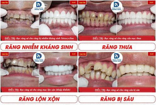 Khách hàng bọc răng sứ thành công tại Nha Khoa Đông Nam