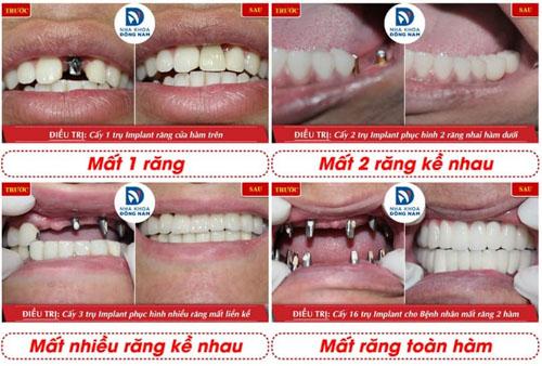Khách hàng cấy ghép răng Implant hiệu quả