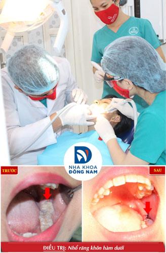 Khách hàng nhổ răng khôn hiệu quả