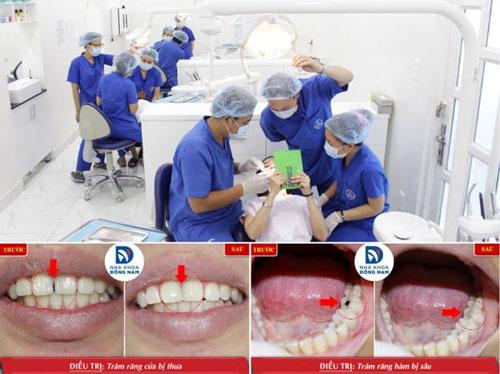 Khách hàng trám răng thẩm mỹ hiệu quả