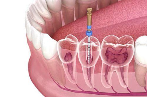 Nha khoa điều trị tủy răng uy tín nhất huyện Bình Chánh