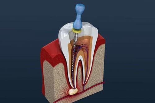 Nha khoa điều trị tủy răng uy tín nhất huyện Nhà Bè
