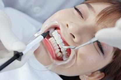 Tẩy trắng răng tại nha khoa Nhà Bè được thực hiện bởi đội ngũ bác sĩ giàu kinh nghiệm. Ảnh minh họa