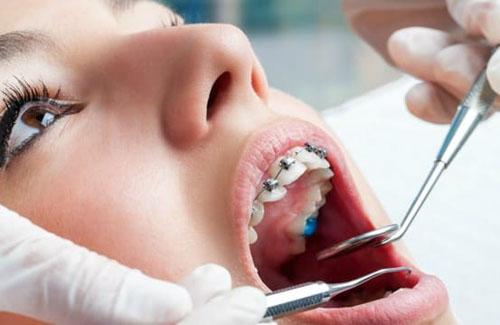Nha khoa niềng răng uy tín tại huyện Nhà Bè
