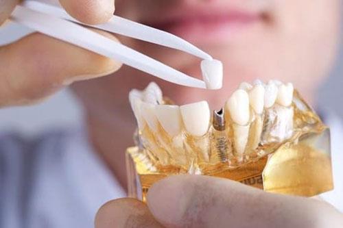 Nha khoa Thiệu Toán chuyên sâu về dịch vụ cấy ghép răng Implant. Ảnh minh họa