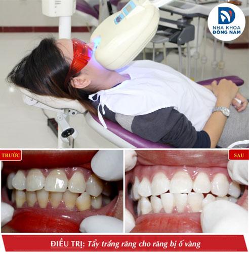 Tẩy trắng răng hiệu quả bằng công nghệ đèn Zoom Whitening