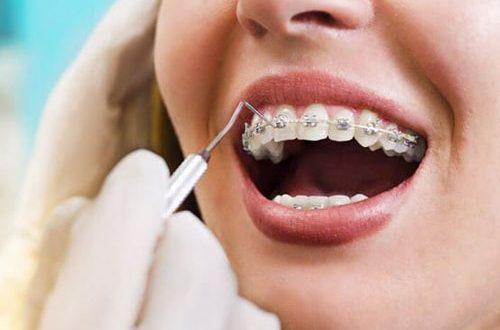 Tổng hợp các nha khoa niềng răng uy tín nhất huyện Bình Chánh