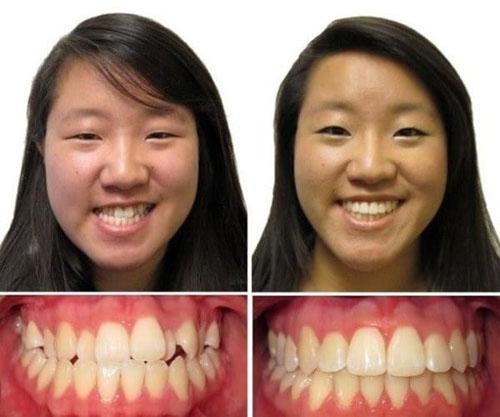 Hình ảnh khi niềng răng bị quặp