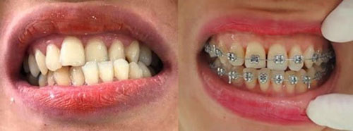 Hình ảnh khi niềng răng sai lệch khớp cắn 2