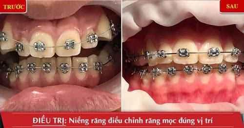 Hình ảnh khi niềng răng sai lệch khớp cắn