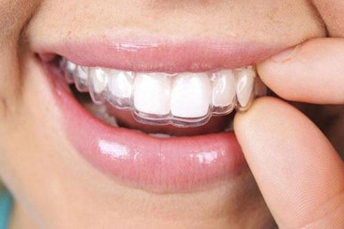 Hình ảnh niềng răng trong suốt Invisalign 2