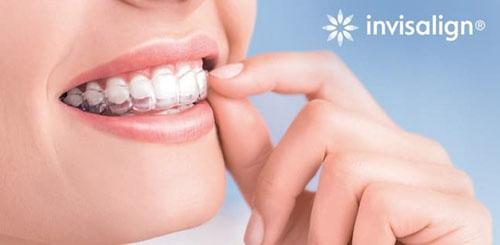 Hình ảnh niềng răng trong suốt Invisalign