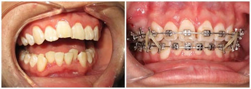 Hình ảnh niềng răng với mắc cài kim loại