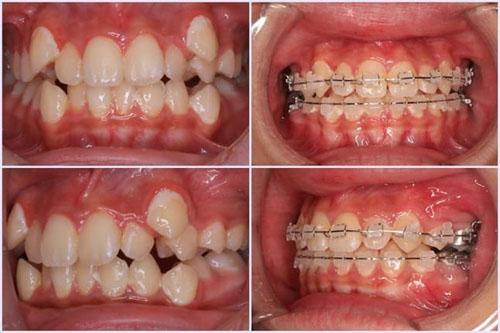 Hình ảnh niềng răng với mắc cài sứ 2