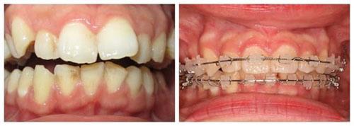 Hình ảnh niềng răng với mắc cài sứ 3