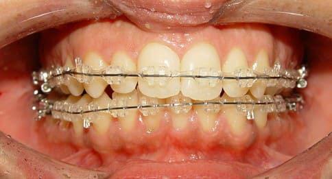 Hình ảnh niềng răng với mắc cài sứ