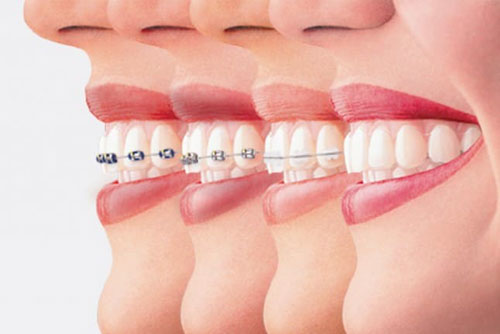 Niềng răng giúp đem lại hàm răng đều đẹp, thẩm mỹ