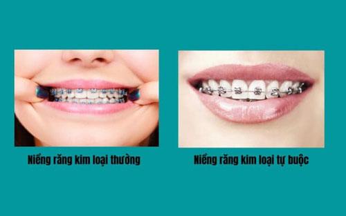 Niềng răng mắc cài kim loại gồm 2 loại