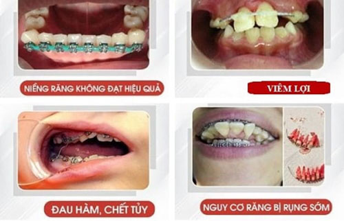 Biến chứng khi tự niềng răng sai cách tại nhà