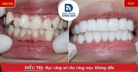 Bọc răng sứ cho răng khểnh
