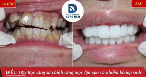 Bọc răng sứ giúp khắc phục hiệu tủa tình trạng răng mọc lộn xộn